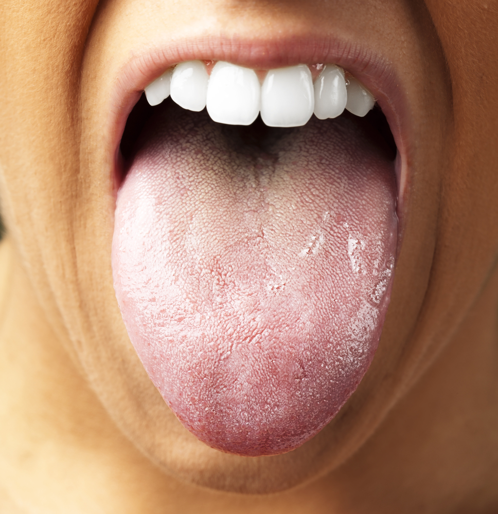 How to Get Rid of Vaper's Tongue
